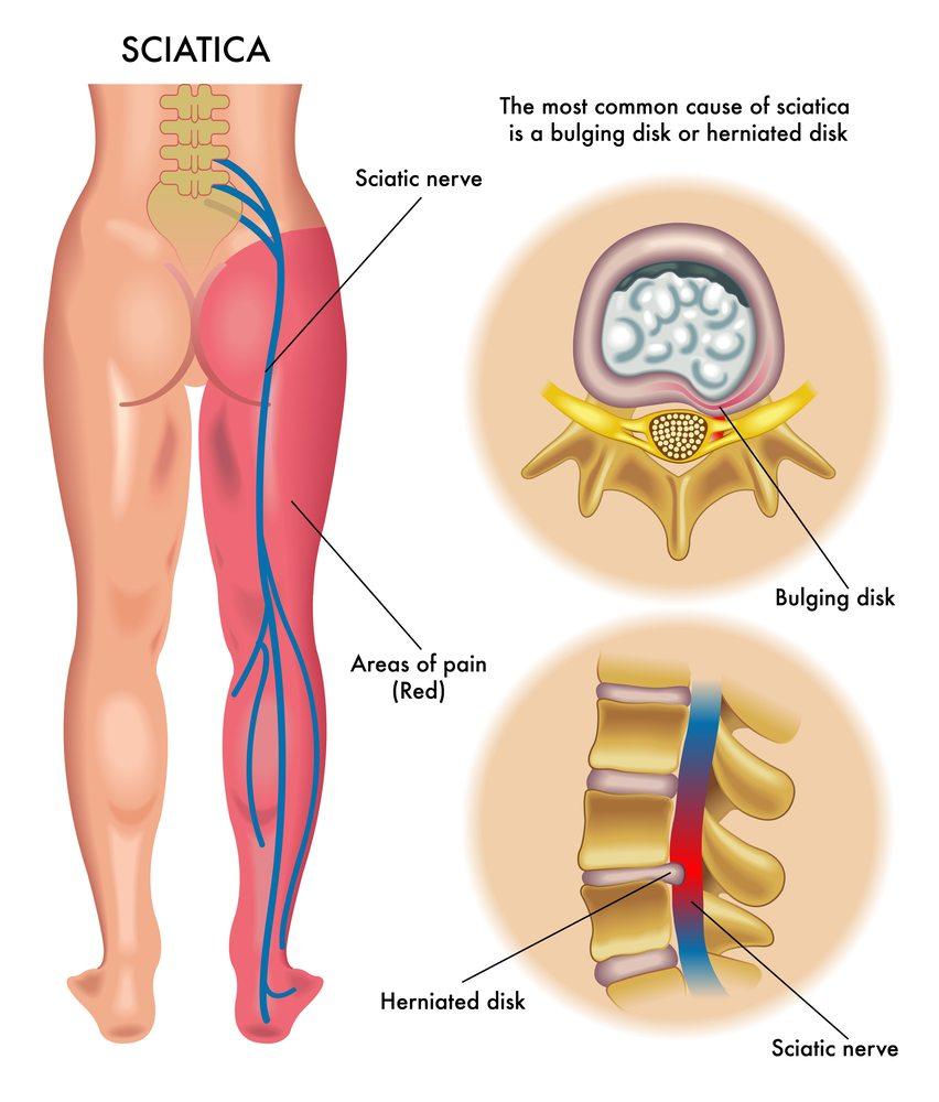 sciatica-disc-nerve-pain